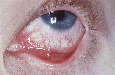 11 Mucosal Oral And Cutaneous Disorders Pocket Dentistry
