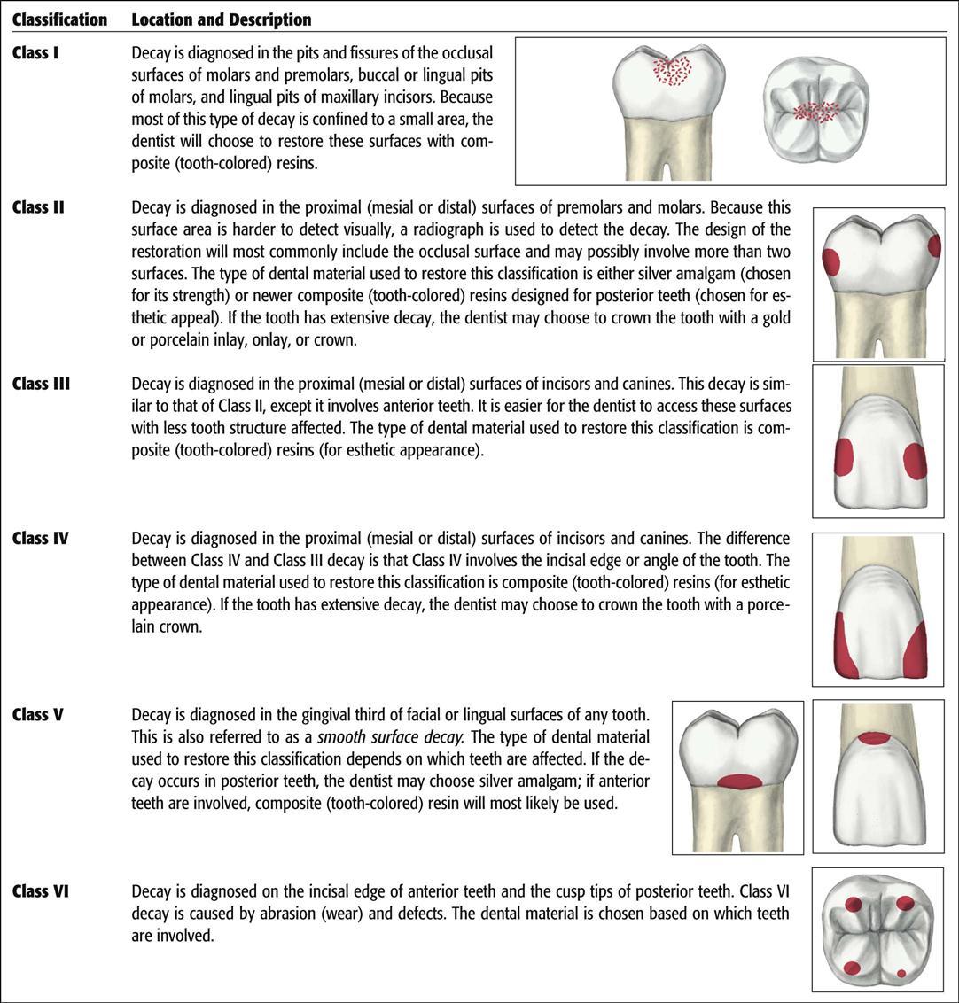 Figure 12 3 Blacks Classification Of Cavities