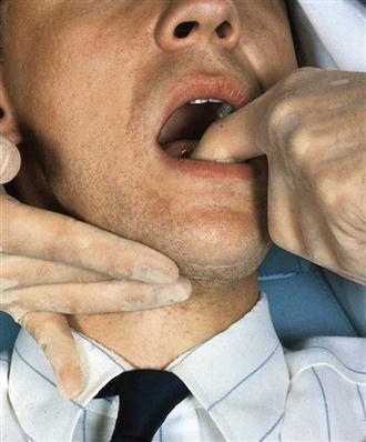 oral-facial-soft-tissue-exam-record