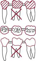 Draw An X Through The Roots Of Missing Tooth Or Teeth Involved Then A Line To Connect All That Make Up Bridge