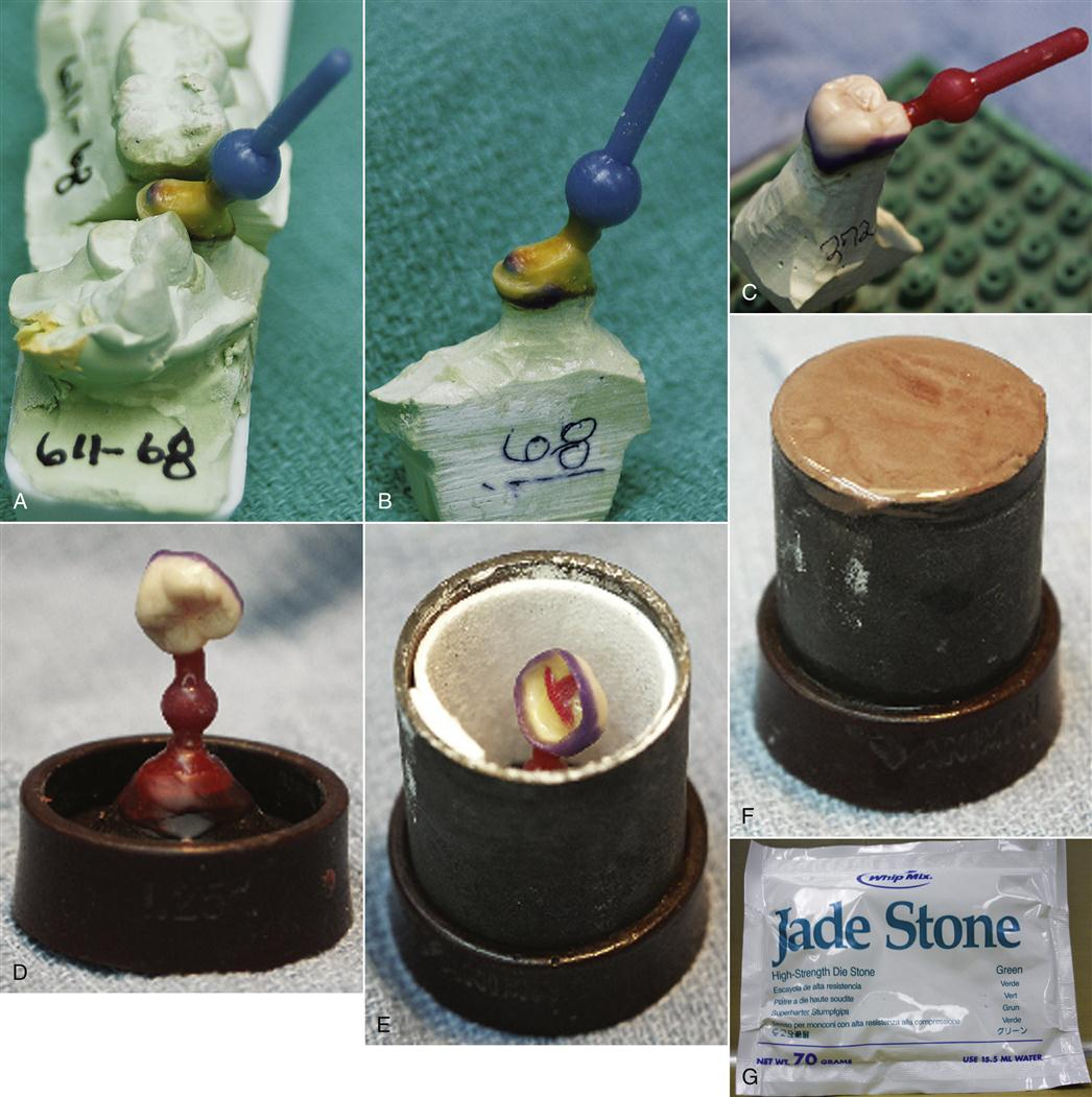 12  Casting and Soldering   Pocket Dentistry
