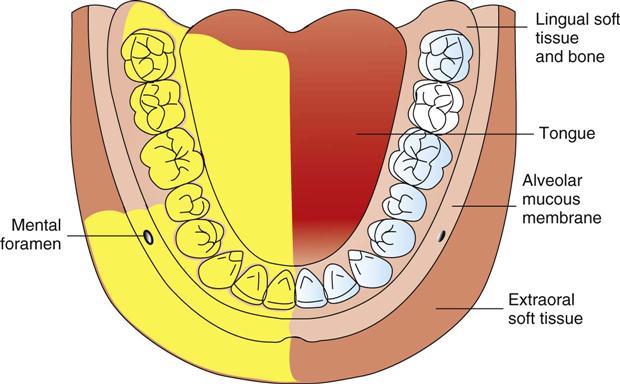 14. Techniques of Mandibular Anesthesia | Pocket Dentistry