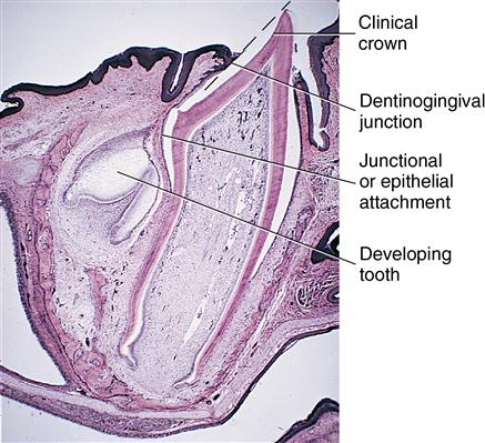 6. Eruption and shedding of the teeth | Pocket Dentistry