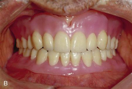 polymers in dentistry Bio-high performance polymers or bio-hpps are the polymeric compounds which are not soluble in water, do not have the tendency to react with other materials.