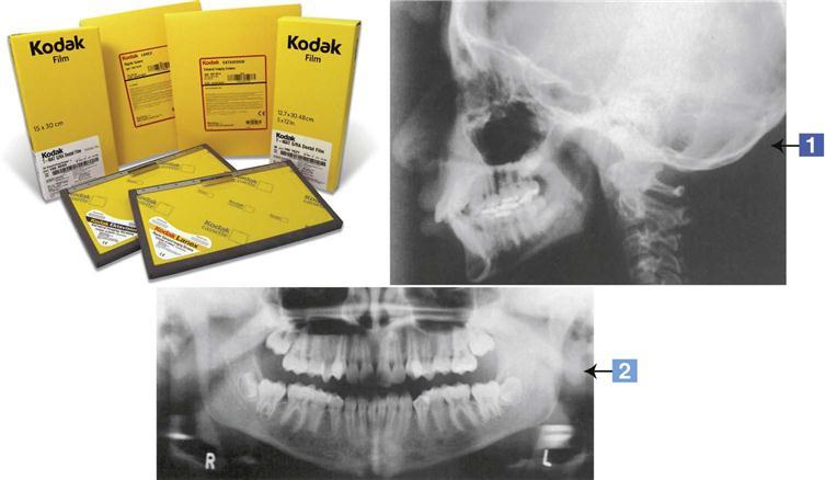 20 Dental Radiography Equipment Pocket Dentistry