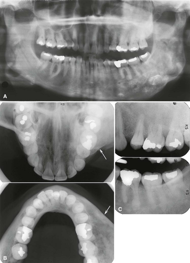 23 Other Bone Diseases Pocket Dentistry