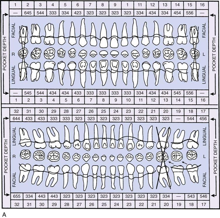 24. Periodontics | Pocket Dentistry