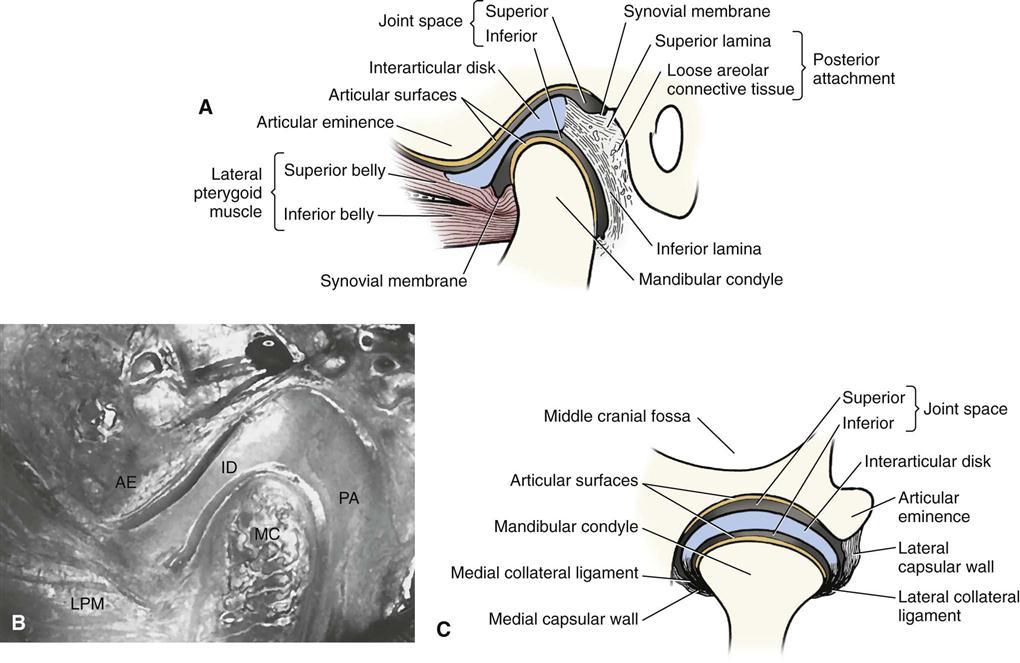 27 Temporomandibular Joint Abnormalities Pocket Dentistry