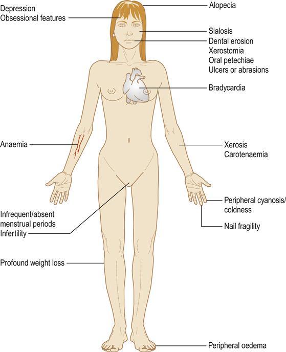 Weight loss comorbidities