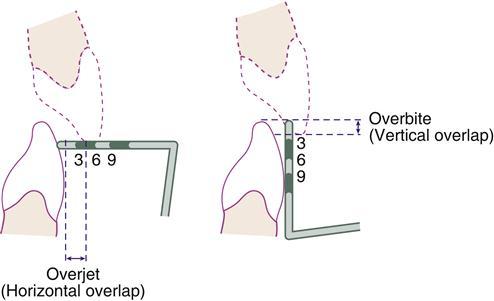 20. Occlusion   Pocket Dentistry