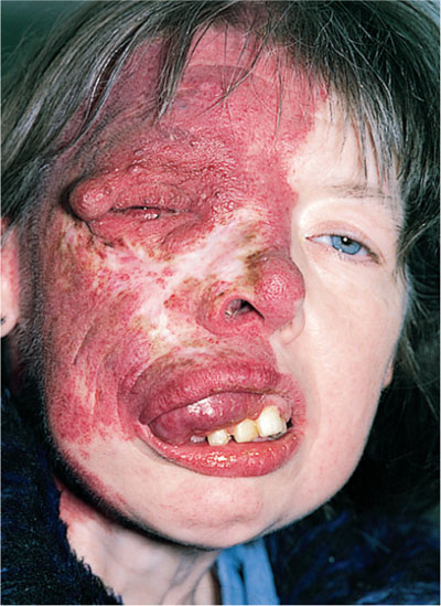 sturge weber syndrome Sturge-weber syndrome (encephalotrigeminal angiomatosis) is a sporadic phakomatosis of unknown etiology that may be characterized by 1.