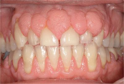 gingival hyperplasia