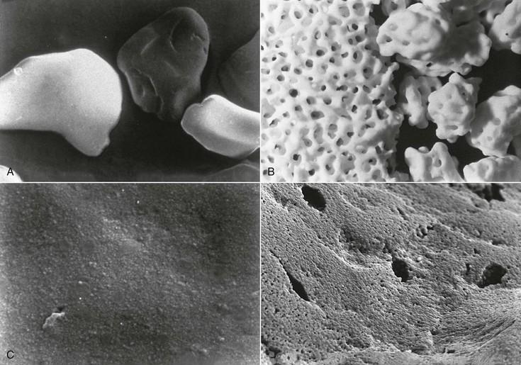 4 Biomaterials For Dental Implants Pocket Dentistry
