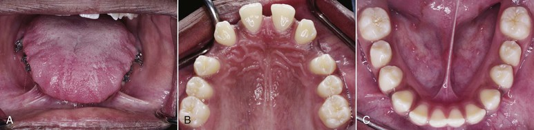 9 management of openbite malocclusion pocket dentistry