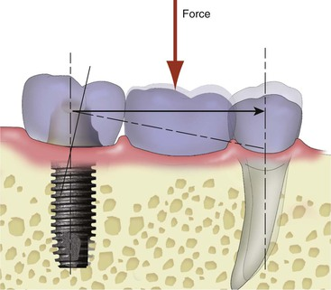 tooth movement diagram tooth layers diagram 17 natural teeth adjacent to an implant site pocket