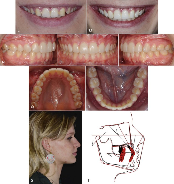 25 Missing Maxillary Lateral Incisors