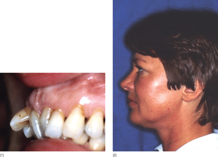 2 Diagnosis: Chief Complaint and Problem List | Pocket Dentistry