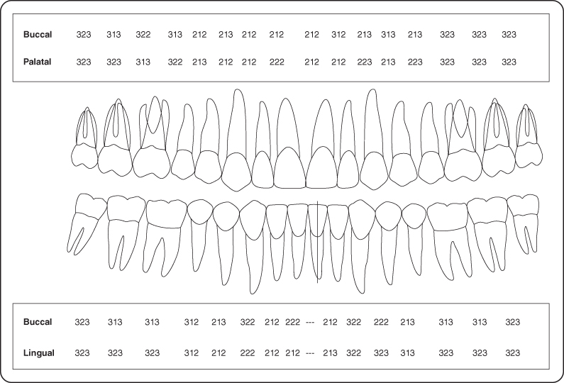 periodontal chart template - periodontal probing chart template downloadable forms