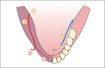 3 The basics: surgical anatomy of the mandible | Pocket Dentistry
