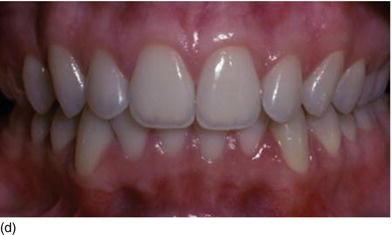 4 The Dentoalveolar Gingival Unit Pocket Dentistry