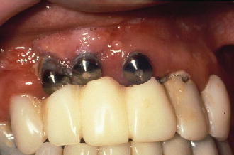 5 Extraction Site Healing Pocket Dentistry