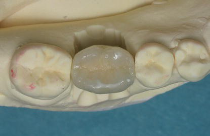 5 Treatment Of A Patient With A Partially Edentulous