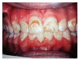 how to fix decalcification on teeth