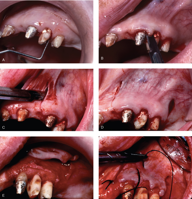6 Resective Osseous Surgery | Pocket Dentistry