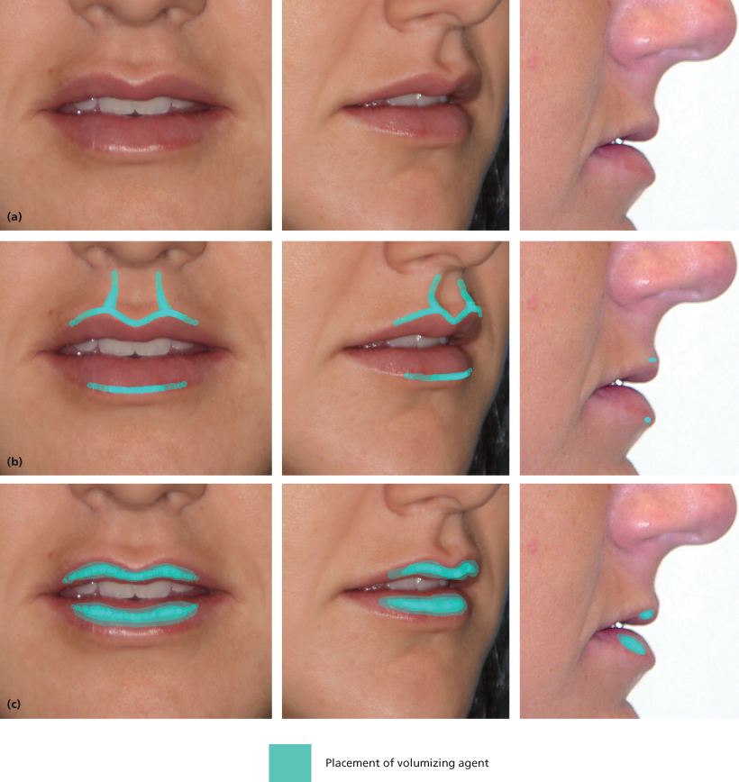 6 Lip and Perioral Cosmetic Surgery | Pocket Dentistry