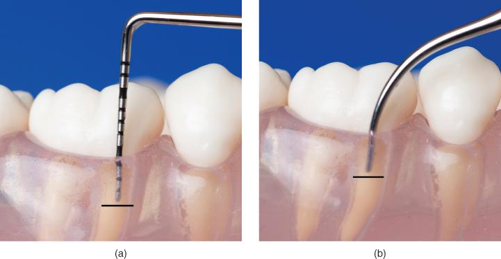 6: Ultrasonic instrumentation technique | Pocket Dentistry
