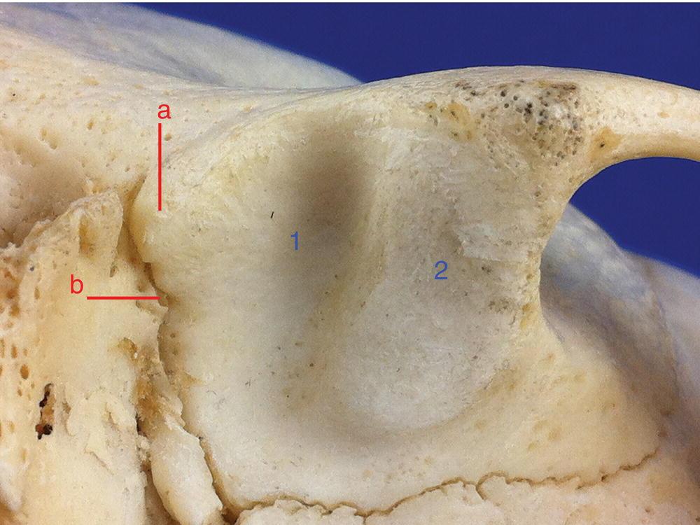 8 Temporomandibular Joint Pocket Dentistry