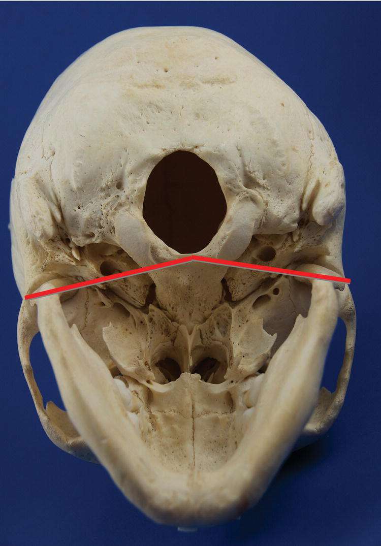 8  Temporomandibular Joint