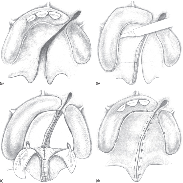 8 Cleft And Craniofacial Surgery