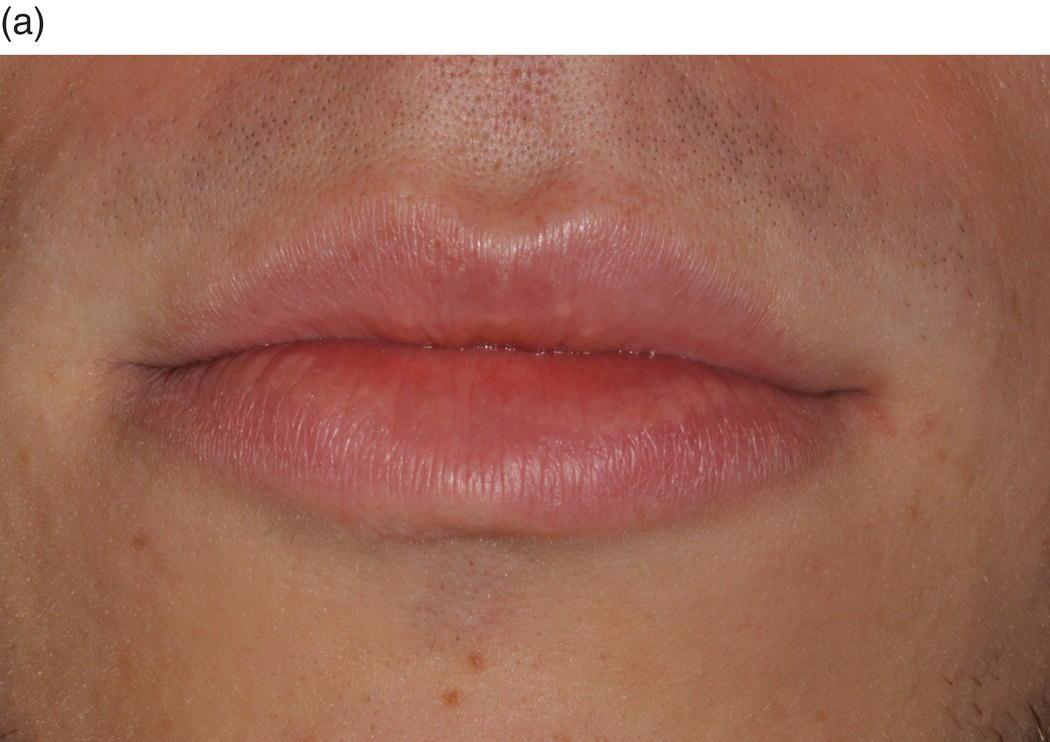 9 Oral Mucosa And Mucosal Sensation Pocket Dentistry