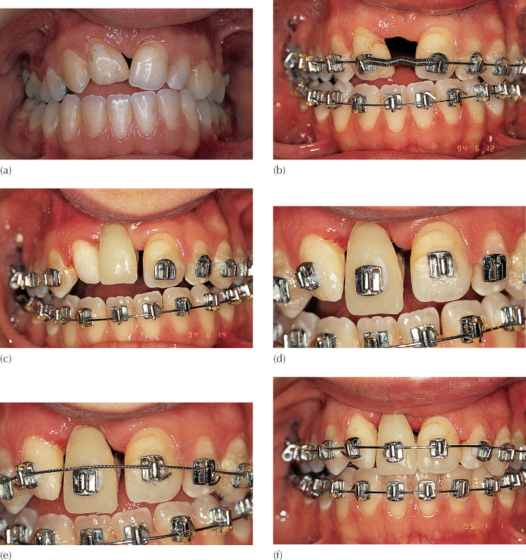 9 Impacted Teeth In The Adult Patient