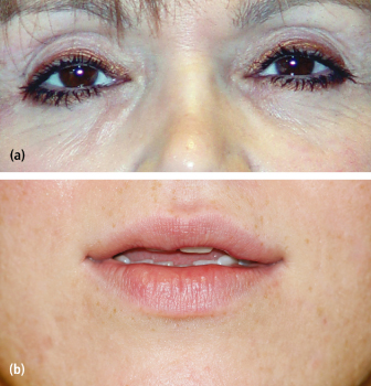 9 Cosmetic Surgery | Pocket Dentistry