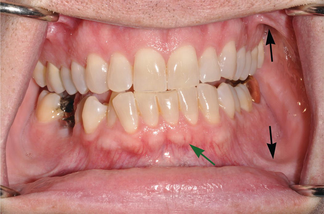 9 Oral Mucosa And Mucosal Sensation Pocket Dentistry