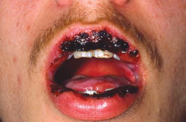 Ovulation clomid predictor