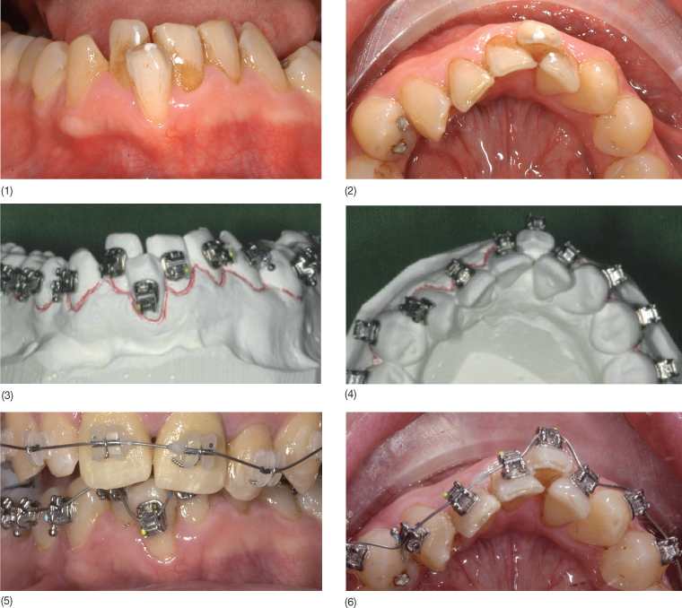 12 A Systematic Approach To The Orthodontic Treatment Of