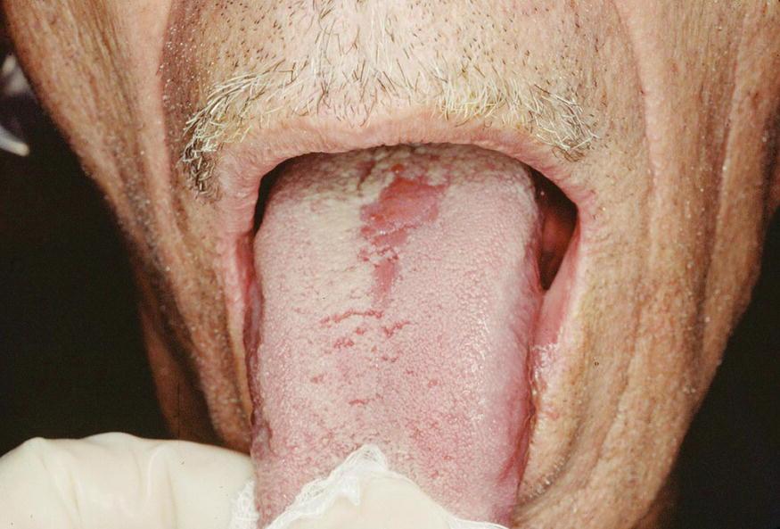 13: Oral Mucosal Lesio...