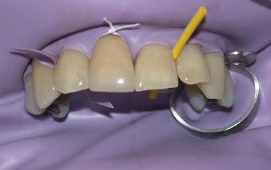 13 Adult Restorative Dentistry Pocket Dentistry