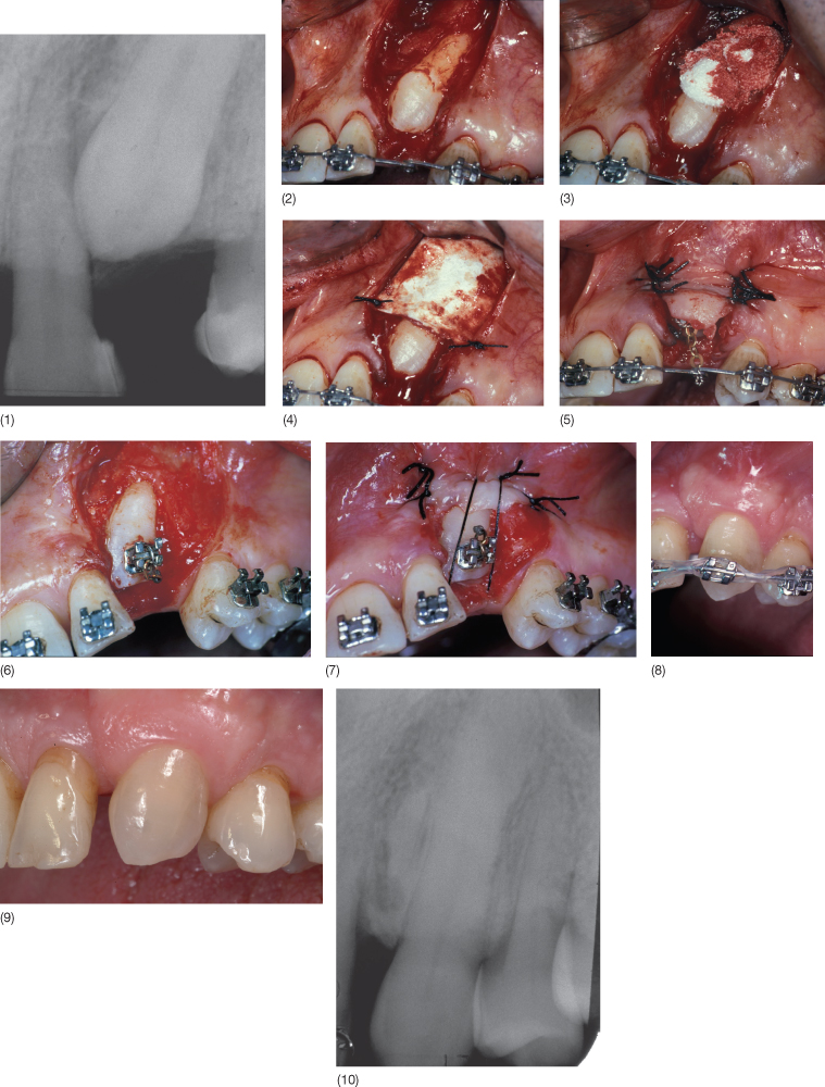 relationship between orthodontics and periodontics