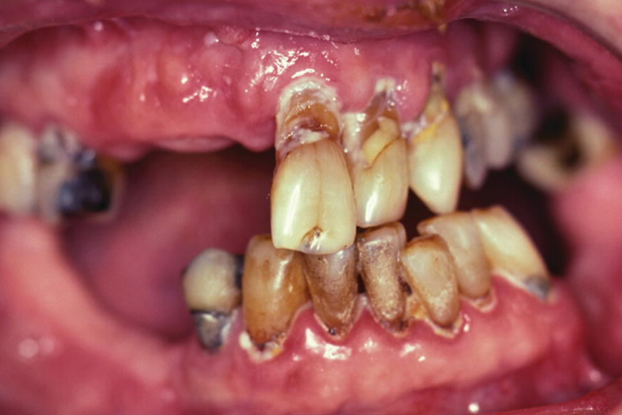 root surface caries Root caries is the presence of caries on root surface or below the cej which is different from enamel caries in the fact that it progresses rapidly and has a classification of its own and the causes, features and treatment are explained in detail below.