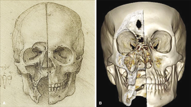 17 Assessment Of Maxillary Transverse Deficiency And