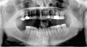 18 Temporomandibular Joint Arthritis Implications