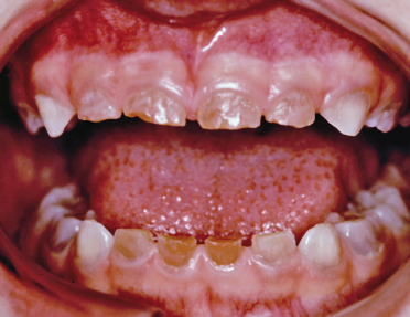 44 Disorders Of Dentine And Eruptive Defects Pocket