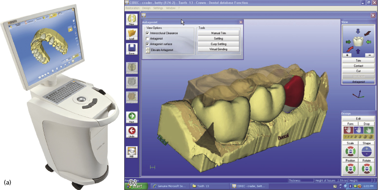 a report on cadcam systems Benefits of in-house lab, start-to-finish cad/cam systems systems with a scanner, software and a mill allow labs of all sizes to bring start-to-finish cad/cam.