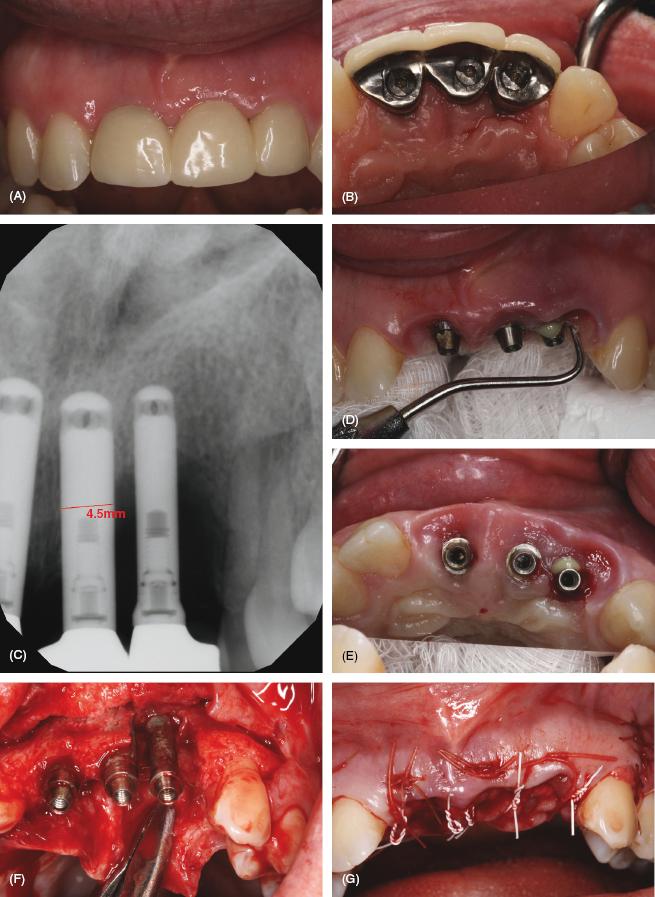 7  implant complications  peri