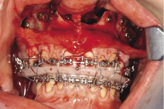 7: Basic orthognathic surgical procedures | Pocket Dentistry
