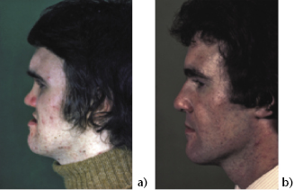 8: High level osteotomies | Pocket Dentistry